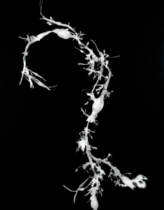 ascophyllum-nodosom